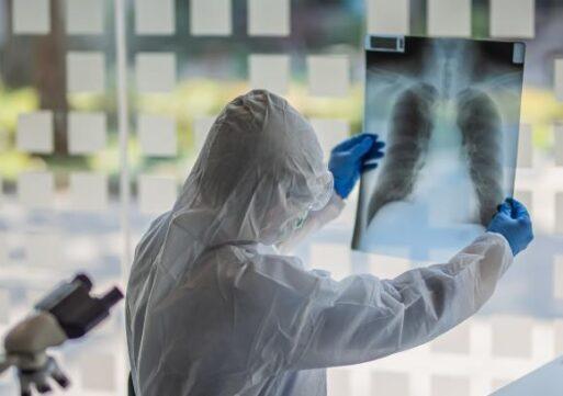63.762 de infecții și 2.764 de persoane decedate din cauza COVID-19